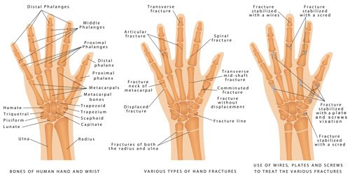fractures & tendons mobile physiotherapy